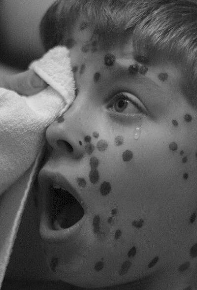 Заболевания горла сыпь конечностей